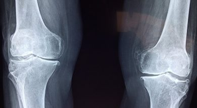 AR knee replacement